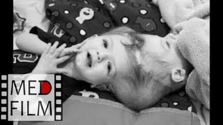 (2) (2) Siamese twins, twinned twins