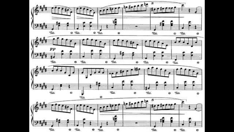 Chopins 19 Waltzes Played by Kocsis Zoltán