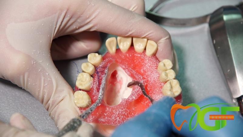 Хирургическая модель Е04 GF Dental