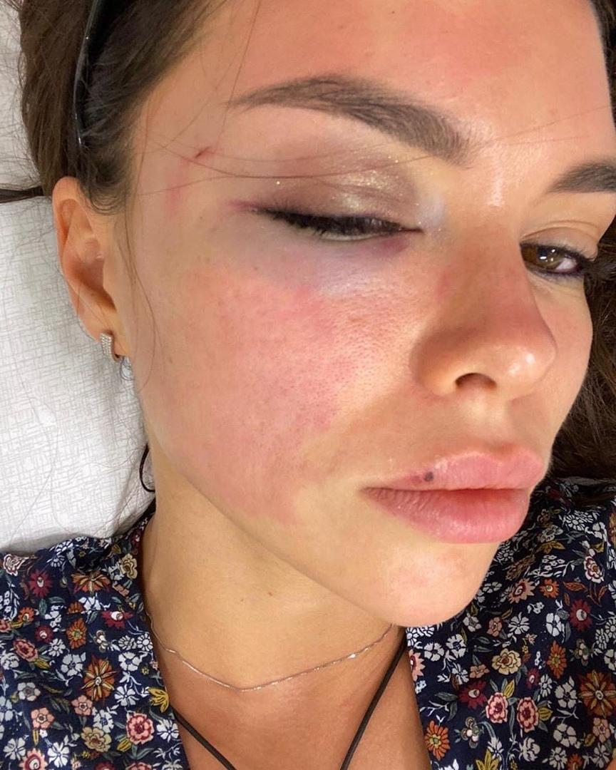 Пьяный Ромашов причинил вред Алине Галимовой