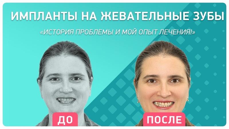 Опыт восстановления жевательных зубов на имплантах