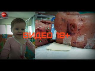Мать из Вологды, которая потеряла свою годовалую дочь из-за халатности врачей, будет идти до конца...