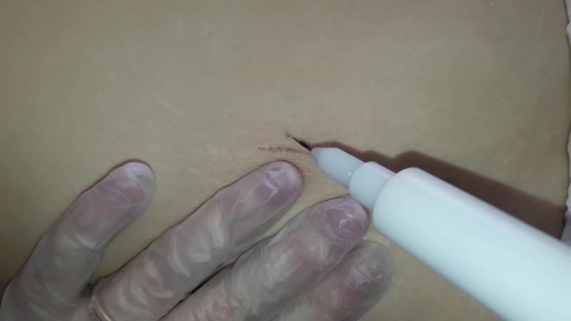Холодная плазма растяжки(стрии)