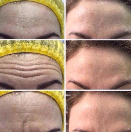 АкцияВрач- косметолог
